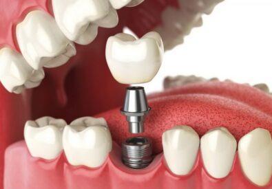 Имплантация зубов в ...