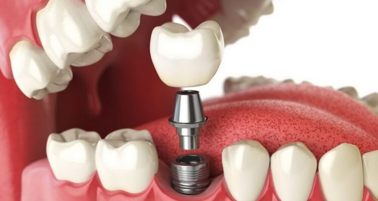 Израильские зубные импланты за 700 BYN
